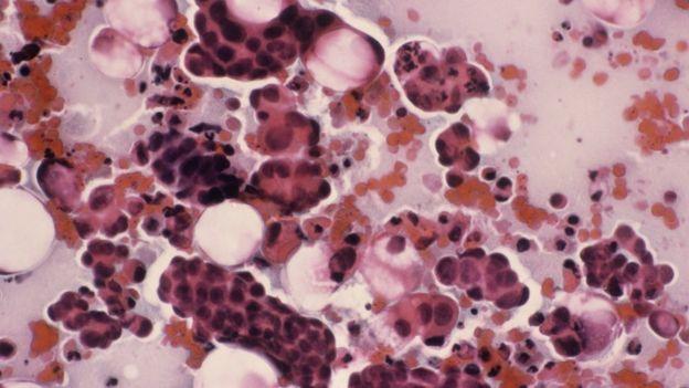 En esta muestra cervical las manchas oscuras indican que hay cáncer de cuello uterino.