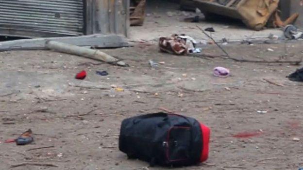 صورة حقيبة لأحد الفارين من القتال