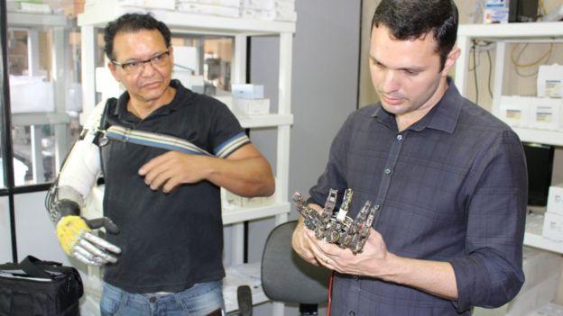 Especialista analisa próteses feitas por Ari Ribeiro