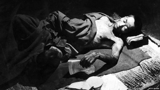 A victim of the atomic bomb blast over Hiroshima, in a makeshift hospital in a bank building (Sept 1945)