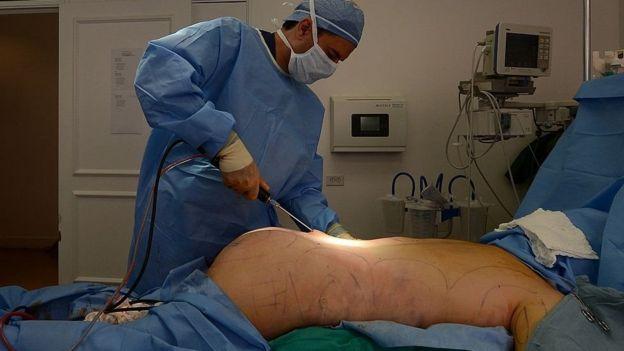 интимная хирургия в казахстане