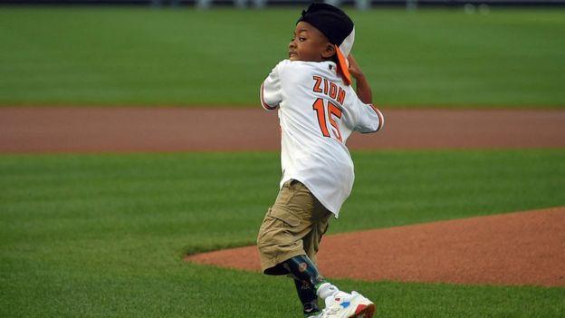 Zion Harvey lanzando una bola de baseball.