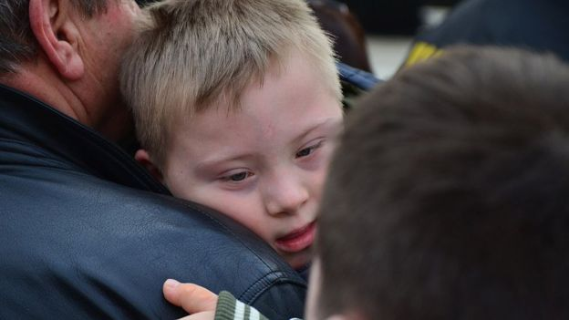 Criança com Síndrome de Down no colo de adulto