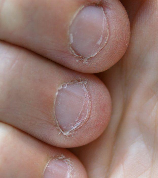Dedos con uñas comidas