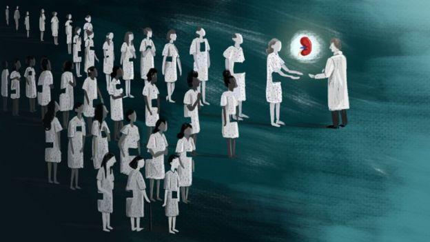 Una ilustración muestra a donantes blancos dándole sus órganos a un médico, mientras que la fila de donantes negro no lo hace.