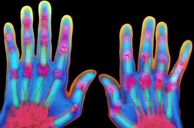 Томографический снимок рук больного