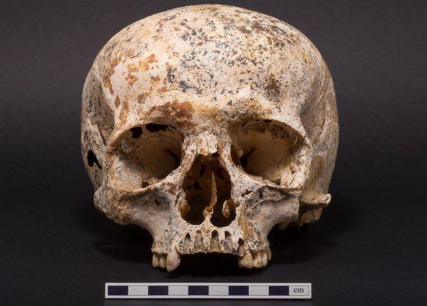 Ava's skull