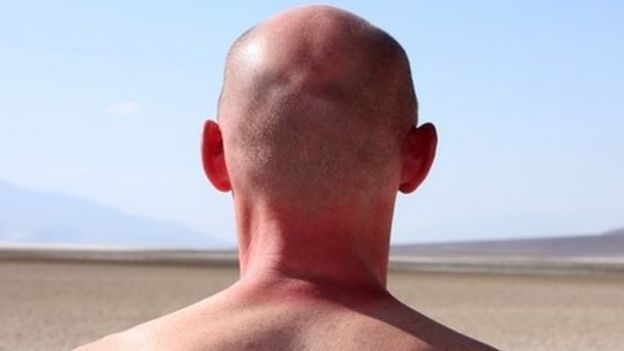 Head and shoulders of man from the back