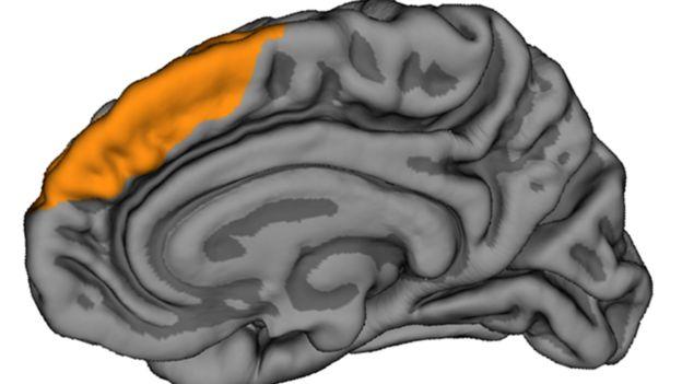 brain diagram showing location of PCS