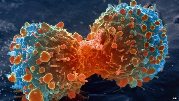 Lung cancer therapy is 'milestone' - BBC News