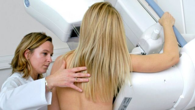Young woman having a mammogram (with radiographer)