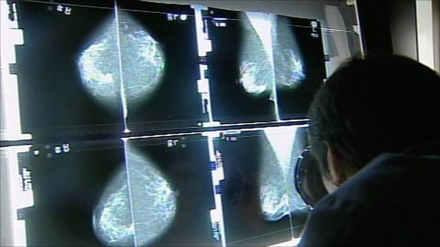 Early diagnosis is seen as key to improvement