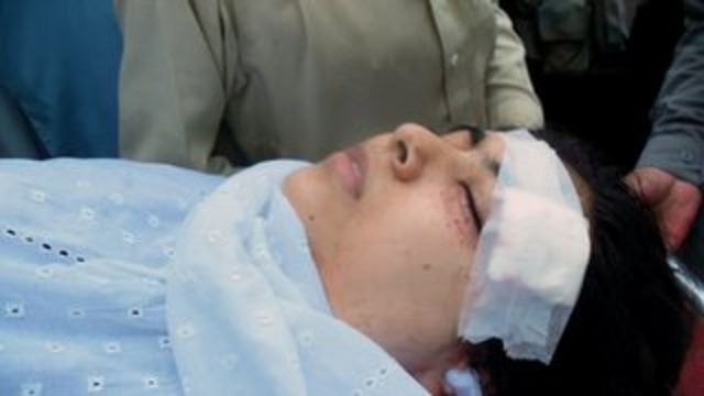 Malala was shot in the head on her way to school