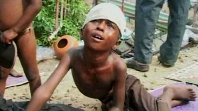 A wounded Sri Lankan child