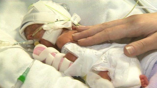 Baby Kai was born at 24 weeks