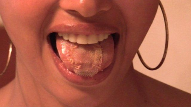 Venezuelan beauty queen shows off mesh on her tongue to help her diet