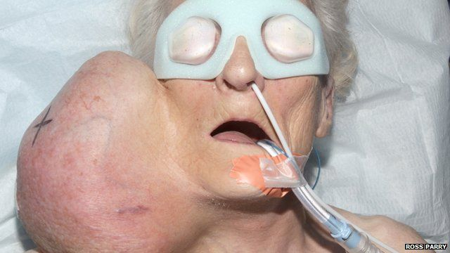 Joyce Haigh before surgery on her 2kg tumour