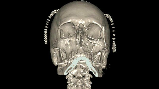 A graphic of a human skull