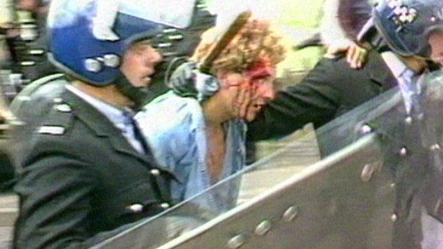Bloodied miner in 1984 Orgreave miners' strike clashes