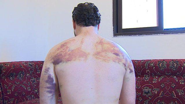 Bruised man