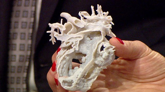 Mina's 3D printed heart