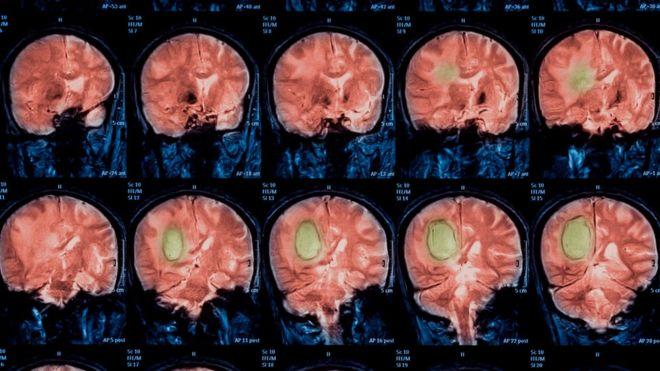 Escáner del cerebro