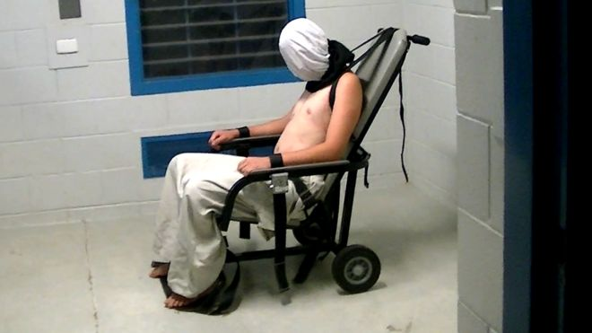 A teenage boy shown hooded and strapped into a chair