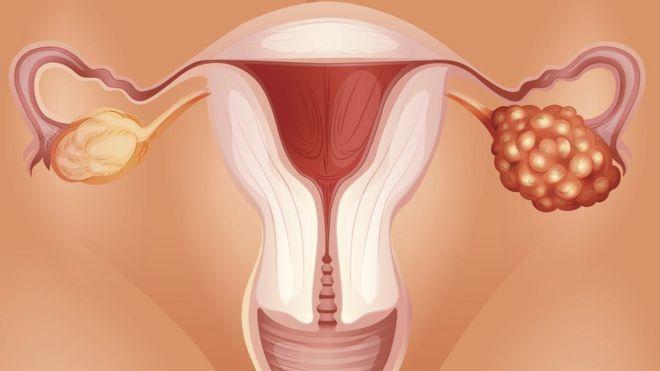 آزمایش خون 'ممکن است در تشخیص زودرس سرطان تخمدان مفید باشد'