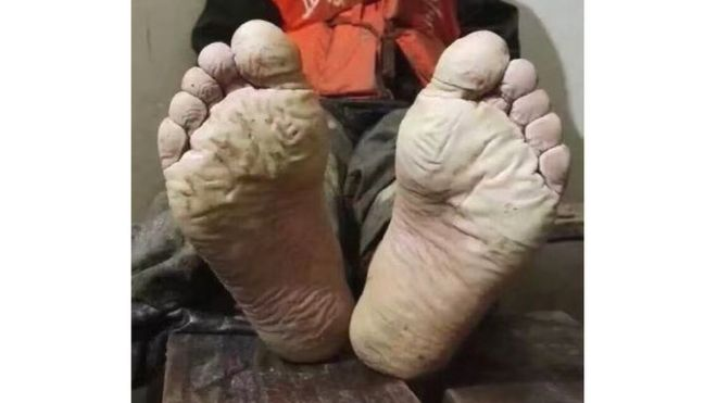 Chinese Soldier's Feet