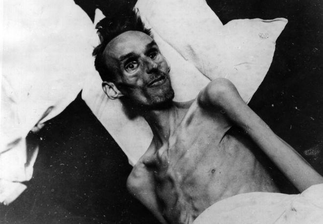 Víctima de 37 años del Invierno del Hambre, en una camilla en 1944.