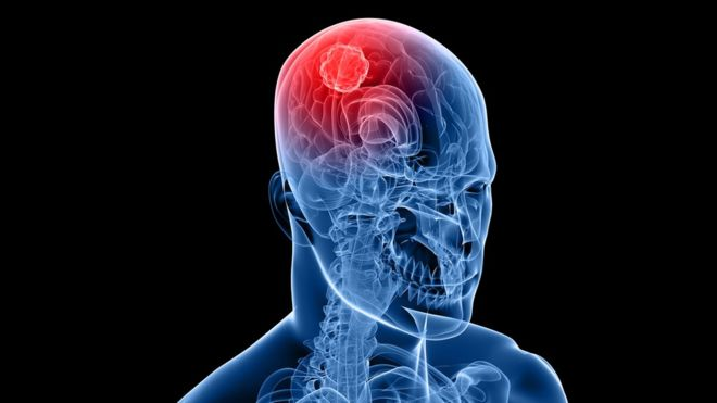 O que são tumores cerebrais?