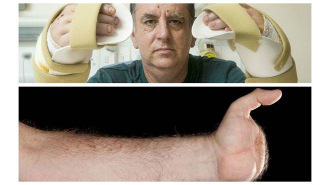 Acima, Chris King depois do transplante duplo; abaixo, a mão esquerda dele antes da cirurgia