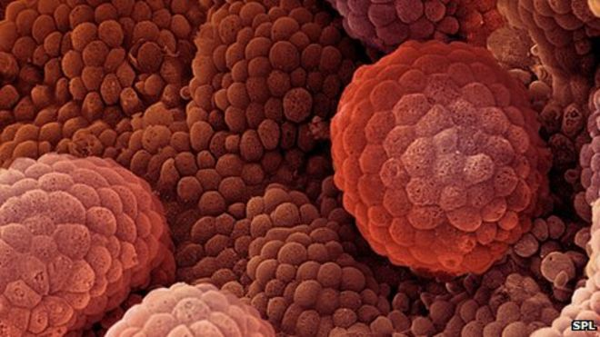 Prostate Cancer: Scientist Identifies five types