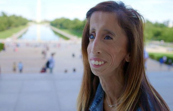 A woman who was bullied for the way she looks is the focus of a new film that premieres at the South by Southwest festival in Austin, Texas on Saturday.