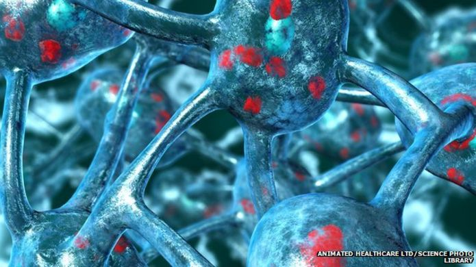 http://ichef-1.bbci.co.uk/news/695/cpsprodpb/10EB7/production/_85230396_parkm2400576-parkinson_s_disease-spl-1.jpg