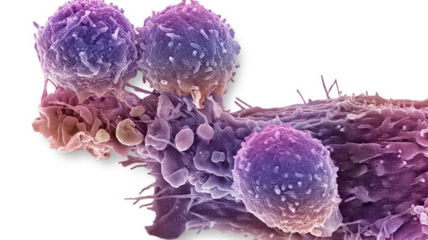 http://ichef-1.bbci.co.uk/news/872/cpsprodpb/50EA/production/_89241702_c0288779-cancer_cell_and_t_lymphocytes,_sem-spl.jpg