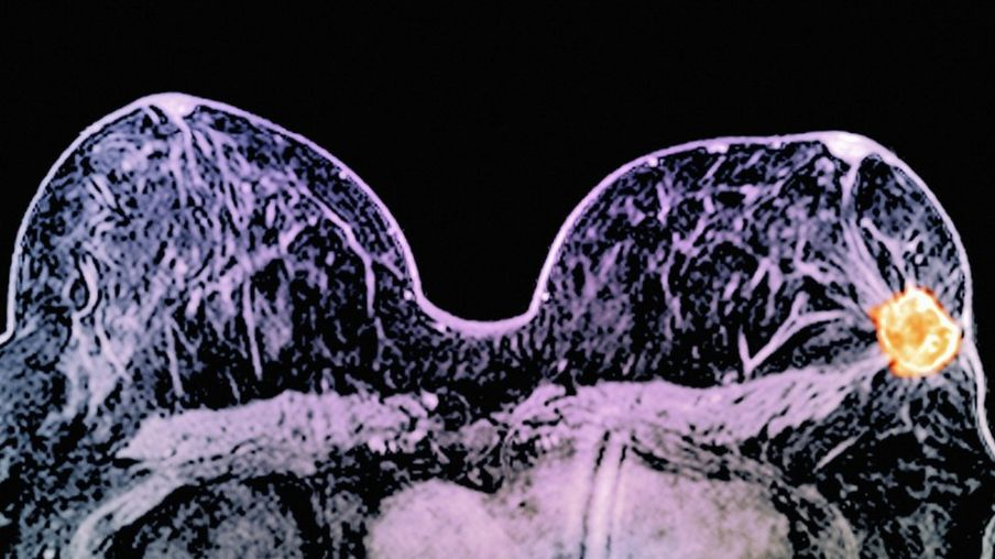 http://ichef-1.bbci.co.uk/news/904/cpsprodpb/66B9/production/_88679262_c0269993-breast_cancer,_mri_scan-spl.jpg