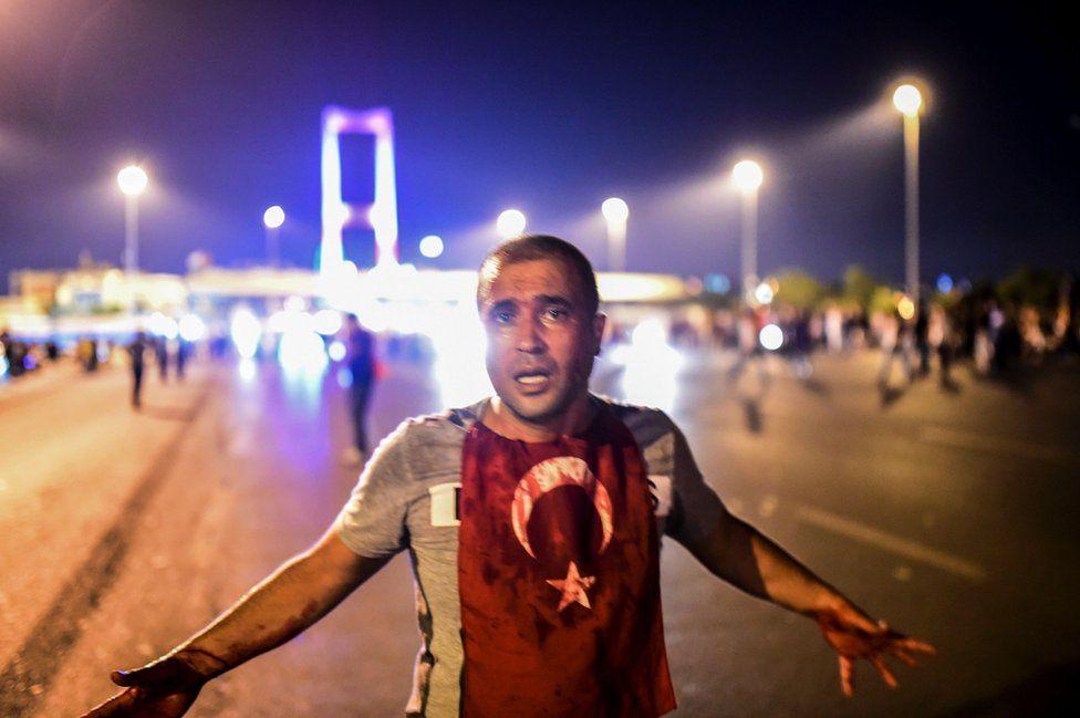 Hombre cubierto en sangre cerca del Puente del Bósforo.