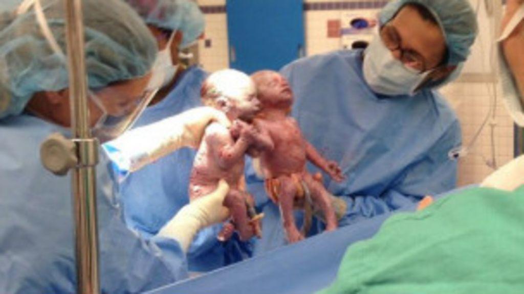 Gêmeas dão as mãos logo depois de nascer nos EUA - BBC Brasil