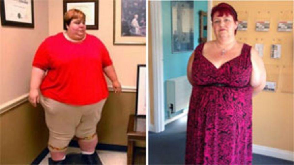 Britânica perde 160kg após sofrer abusos pela obesidade - BBC ...