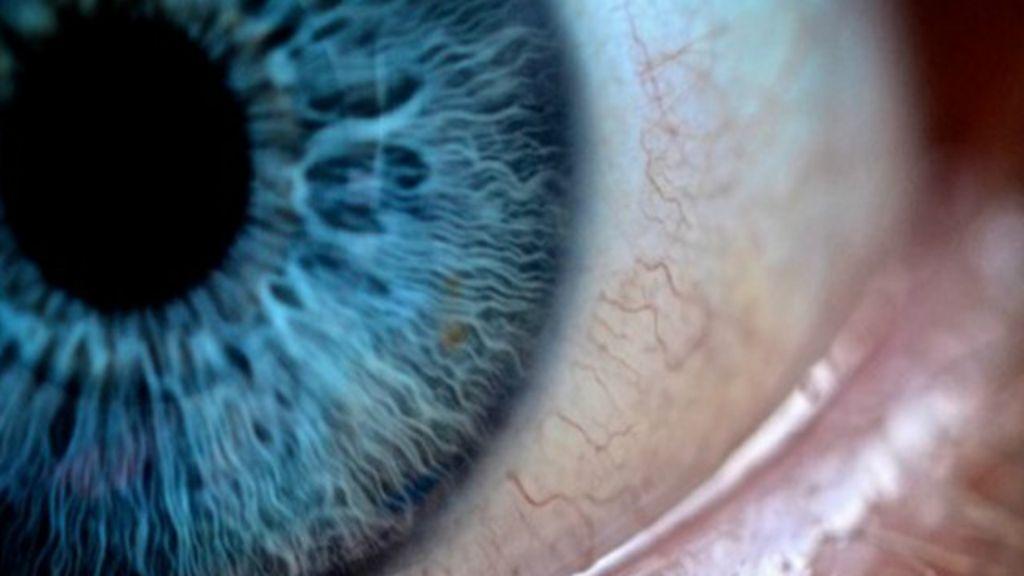Estudo investiga diagnóstico de Alzheimer pelos olhos - BBC Brasil