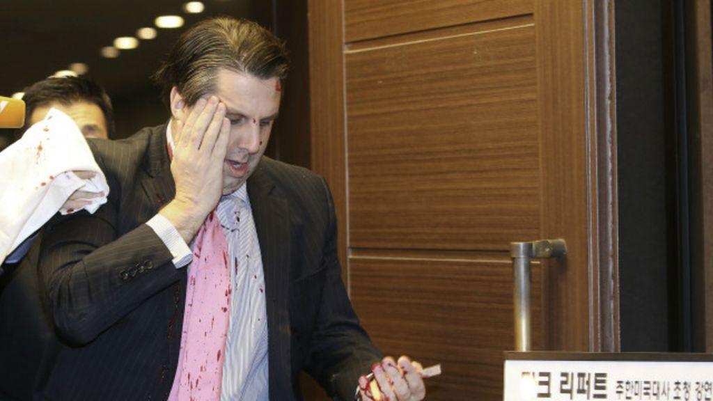 Embaixador dos EUA na Coreia do Sul é esfaqueado em evento em ...