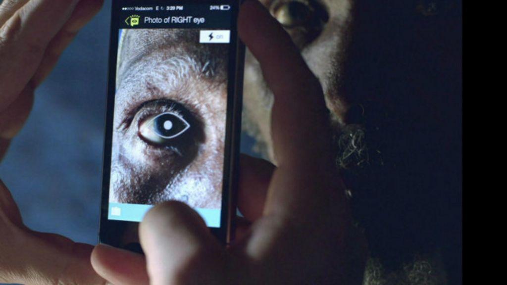 Aplicativo facilita exame e diagnóstico de olhos - BBC Brasil