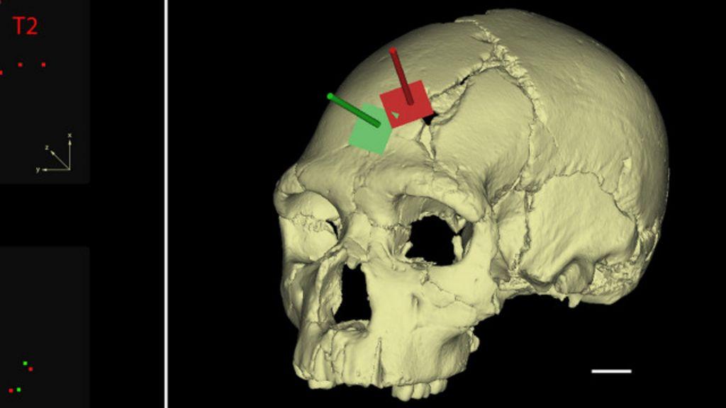 Análise em crânio revela assassinato brutal há 430 mil anos - BBC ...