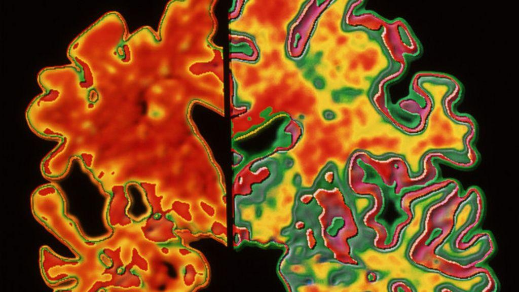 Cientistas investigam possibilidade de Alzheimer ser transmissível ...