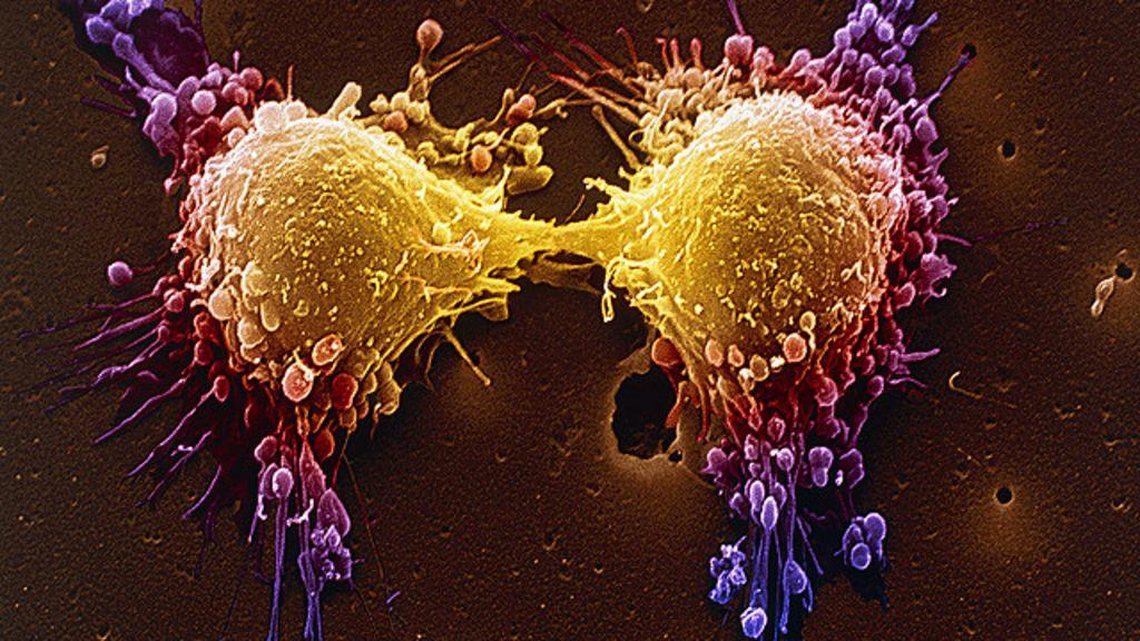 Nova terapia genética faz células de câncer cometerem ' suicídio ...