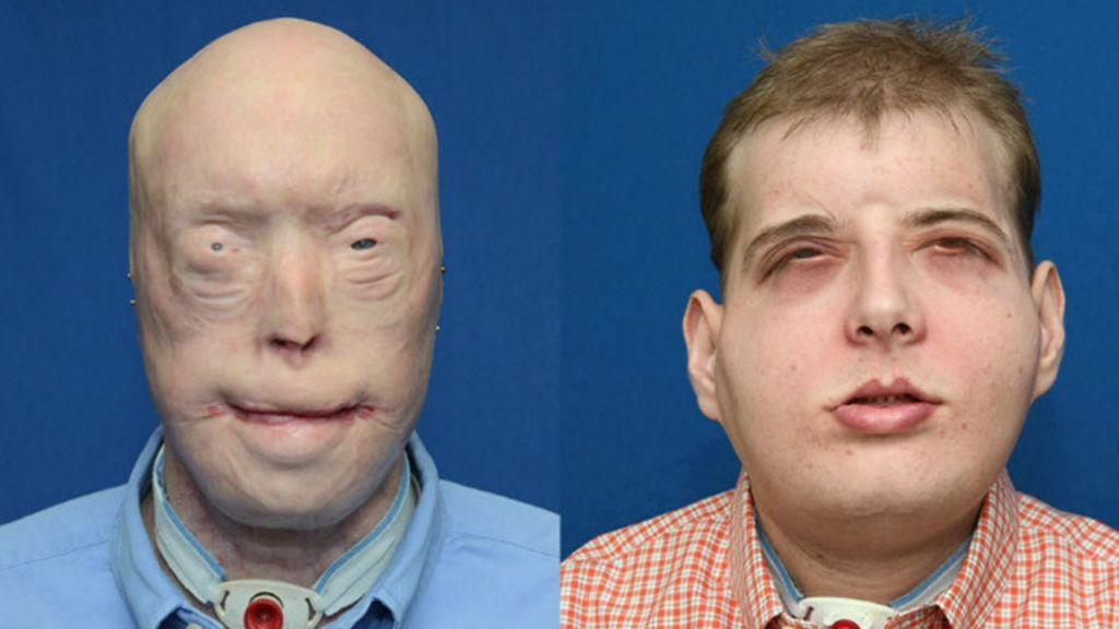 Entenda como foi o mais amplo transplante de rosto já feito - BBC ...