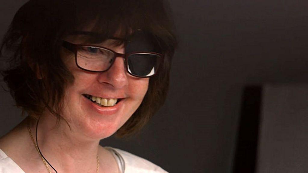 Britânica recupera visão com olho biônico - BBC Brasil
