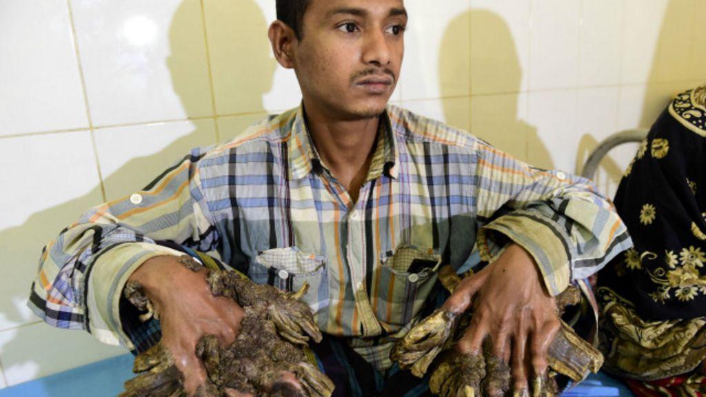 Drama de 'homem-árvore' mobiliza médicos na Ásia - BBC Brasil