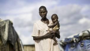Une jeune femme et son bébé atteint de choléra à Juba, Soudan du Sud